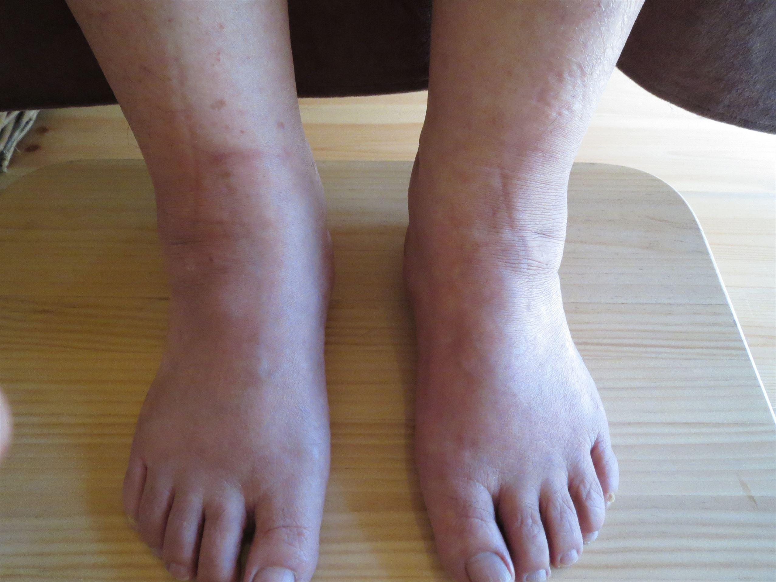 足 の くるぶし の 腫れ